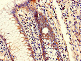 Immunohistochemistry of paraffin-embedded human colon cancer using CSB-PA617909LA01HU at dilution of 1:100