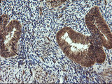 IHC of paraffin-embedded Human endometrium tissue using anti-TRIM44 mouse monoclonal antibody.
