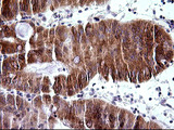IHC of paraffin-embedded Carcinoma of Human pancreas tissue using anti-TRIM45 mouse monoclonal antibody. (Heat-induced epitope retrieval by 10mM citric buffer, pH6.0, 120°C for 3min).