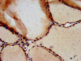 Immunohistochemistry image at a dilution of 1:700 and staining in paraffin-embedded human thyroid tissue performed on a Leica BondTM system. After dewaxing and hydration, antigen retrieval was mediated by high pressure in a citrate buffer (pH 6.0) . Section was blocked with 10% normal goat serum 30min at RT. Then primary antibody (1% BSA) was incubated at 4 °C overnight. The primary is detected by a biotinylated secondary antibody and visualized using an HRP conjugated SP system.