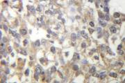 IHC of Tubulin (F414) pAb in paraffin-embedded human breast carcinoma tissue.