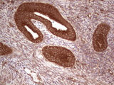 IHC of paraffin-embedded Human endometrium tissue using anti-UBE2D2 mouse monoclonal antibody. (Heat-induced epitope retrieval by 1 mM EDTA in 10mM Tris, pH8.5, 120°C for 3min).