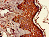 Immunohistochemistry of paraffin-embedded human skin tissue using CSB-PA892477LA01HU at dilution of 1:100