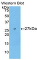 Western blot of recombinant UCHL5 / UCH37.  This image was taken for the unconjugated form of this product. Other forms have not been tested.