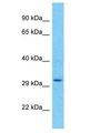 UPK3BL antibody Western Blot of 721_B. Antibody dilution: 1 ug/ml.  This image was taken for the unconjugated form of this product. Other forms have not been tested.