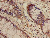 Immunohistochemistry of paraffin-embedded human colon cancer at dilution of 1:100