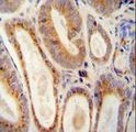 WFDC12 antibody immunohistochemistry of formalin-fixed and paraffin-embedded human prostate carcinoma followed by peroxidase-conjugated secondary antibody and DAB staining.