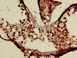 Immunohistochemistry of paraffin-embedded human testis tissue using CSB-PA764111LA01HU at dilution of 1:100