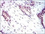 Immunohistochemistry-Paraffin: YAP1 Antibody (1A12) - Immunohistochemical analysis of paraffin-embedded prostate cancer tissues using YAP1 mouse mAb with DAB staining.