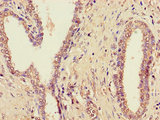Immunohistochemistry of paraffin-embedded human prostate cancer using CSB-PA837848LA01HU at dilution of 1:100