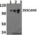 Western blot of ZKSCAN5 polyclonal antibody at 1:500 dilution. Lane 1: RAW264.7 whole cell lysate (40 ug). Lane 2: HeLa whole cell lysate (40 ug). Lane 3: H9C2 whole cell lysate (40 ug).