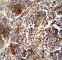 ZNF30 antibody immunohistochemistry of formalin-fixed and paraffin-embedded human lung carcinoma followed by peroxidase-conjugated secondary antibody and DAB staining.