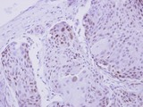 IHC of paraffin-embedded Breast ca, using ZNF530 antibody at 1:250 dilution.