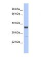 Western blot of Human ACHN. ZNF586 antibody dilution 1.0 ug/ml.  This image was taken for the unconjugated form of this product. Other forms have not been tested.