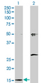 Western Blot analysis of AP2S1 expression in transfected 293T cell line by AP2S1 monoclonal antibody (M01), clone 3E4.Lane 1: AP2S1 transfected lysate(17 KDa).Lane 2: Non-transfected lysate.