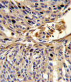 Formalin-fixed and paraffin-embedded human lung carcinoma reacted with APEX2 Antibody , which was peroxidase-conjugated to the secondary antibody, followed by DAB staining. This data demonstrates the use of this antibody for immunohistochemistry; clinical relevance has not been evaluated.