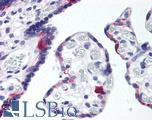 Anti-LRP8 antibody IHC of human placenta. Immunohistochemistry of formalin-fixed, paraffin-embedded tissue after heat-induced antigen retrieval. Antibody LS-B169 concentration 10 ug/ml.  This image was taken for the unconjugated form of this product. Other forms have not been tested.