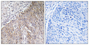Immunohistochemistry analysis of paraffin-embedded human cervix carcinoma tissue, using APOL2 Antibody. The picture on the right is blocked with the synthesized peptide.