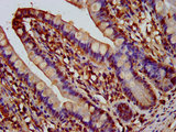 IHC image of AQP10 Antibody diluted at 1:200 and staining in paraffin-embedded human small intestine tissue performed on a Leica BondTM system. After dewaxing and hydration, antigen retrieval was mediated by high pressure in a citrate buffer (pH 6.0). Section was blocked with 10% normal goat serum 30min at RT. Then primary antibody (1% BSA) was incubated at 4°C overnight. The primary is detected by a biotinylated secondary antibody and visualized using an HRP conjugated SP system.