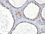 AR / Androgen Receptor Antibody - Formalin-fixed, paraffin-embedded human prostate carcinoma stained with AR antibody (AR441).  This image was taken for the unmodified form of this product. Other forms have not been tested.