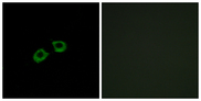 ARFGEF2 / BIG2 Antibody - Immunofluorescence analysis of A549 cells, using ARFGEF2 Antibody. The picture on the right is blocked with the synthesized peptide.