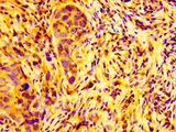 ARFGEF2 / BIG2 Antibody - Immunohistochemistry image at a dilution of 1:100 and staining in paraffin-embedded human pancreatic cancer performed on a Leica BondTM system. After dewaxing and hydration, antigen retrieval was mediated by high pressure in a citrate buffer (pH 6.0) . Section was blocked with 10% normal goat serum 30min at RT. Then primary antibody (1% BSA) was incubated at 4 °C overnight. The primary is detected by a biotinylated secondary antibody and visualized using an HRP conjugated SP system.