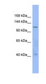 ARHGAP20 Antibody - ARHGAP20 antibody Western blot of 721_B cell lysate. This image was taken for the unconjugated form of this product. Other forms have not been tested.