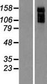 ARHGAP31 / CDGAP Protein - Western validation with an anti-DDK antibody * L: Control HEK293 lysate R: Over-expression lysate