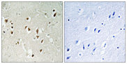 Immunohistochemistry analysis of paraffin-embedded human brain tissue, using GRF-1 Antibody. The picture on the right is blocked with the synthesized peptide.