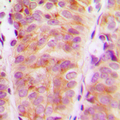 Immunohistochemical analysis of ARHGEF10 staining in human breast cancer formalin fixed paraffin embedded tissue section. The section was pre-treated using heat mediated antigen retrieval with sodium citrate buffer (pH 6.0). The section was then incubated with the antibody at room temperature and detected using an HRP conjugated compact polymer system. DAB was used as the chromogen. The section was then counterstained with hematoxylin and mounted with DPX.
