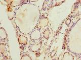 Immunohistochemistry of paraffin-embedded human thyroid tissue using antibody at dilution of 1:100.