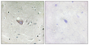Immunohistochemistry analysis of paraffin-embedded human brain tissue, using ARMX3 Antibody. The picture on the right is blocked with the synthesized peptide.