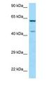 ARMCX5 Antibody - ARMCX5 antibody Western Blot of HeLa.  This image was taken for the unconjugated form of this product. Other forms have not been tested.
