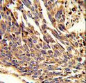 ARPC1B / p41-ARC / ARP2 Antibody - Formalin-fixed and paraffin-embedded human lung carcinoma reacted with ARPC1B Antibody , which was peroxidase-conjugated to the secondary antibody, followed by DAB staining. This data demonstrates the use of this antibody for immunohistochemistry; clinical relevance has not been evaluated.
