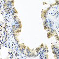 ARSF / Arylsulfatase F Antibody - Immunohistochemistry of paraffin-embedded mouse lung tissue.