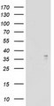 ART1 /CD296 Antibody - HEK293T cells were transfected with the pCMV6-ENTRY control (Left lane) or pCMV6-ENTRY ART1 (Right lane) cDNA for 48 hrs and lysed. Equivalent amounts of cell lysates (5 ug per lane) were separated by SDS-PAGE and immunoblotted with anti-ART1.