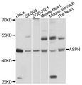 ASPN / Asporin Antibody - Western blot analysis of extracts of various cell lines, using ASPN antibody at 1:1000 dilution. The secondary antibody used was an HRP Goat Anti-Rabbit IgG (H+L) at 1:10000 dilution. Lysates were loaded 25ug per lane and 3% nonfat dry milk in TBST was used for blocking. An ECL Kit was used for detection and the exposure time was 10s.