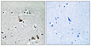 Immunohistochemistry analysis of paraffin-embedded human brain tissue, using ATP6V1H Antibody. The picture on the right is blocked with the synthesized peptide.