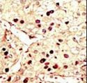 AURKB / Aurora-B Antibody - Formalin-fixed and paraffin-embedded human cancer tissue reacted with the primary antibody, which was peroxidase-conjugated to the secondary antibody, followed by DAB staining. This data demonstrates the use of this antibody for immunohistochemistry; clinical relevance has not been evaluated. BC = breast carcinoma; HC = hepatocarcinoma.
