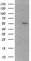 HEK293T cells were transfected with the pCMV6-ENTRY control (Left lane) or pCMV6-ENTRY B3GALNT2 (Right lane) cDNA for 48 hrs and lysed. Equivalent amounts of cell lysates (5 ug per lane) were separated by SDS-PAGE and immunoblotted with anti-B3GALNT2.