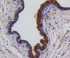Immunohistochemistry of paraffin-embedded human mammary cancer using BBC3 antibodyat dilution of 1:100 (40x lens).
