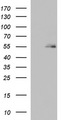 HEK293T cells were transfected with the pCMV6-ENTRY control (Left lane) or pCMV6-ENTRY BBS4 (Right lane) cDNA for 48 hrs and lysed. Equivalent amounts of cell lysates (5 ug per lane) were separated by SDS-PAGE and immunoblotted with anti-BBS4.