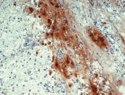 Immunohistochemistry staining of human pituitary gland (frozen sections) with anti-human beta Endorphin (B31.15).