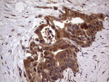 IHC of paraffin-embedded Carcinoma of Human pancreas tissue using anti-BFSP2 mouse monoclonal antibody. (Heat-induced epitope retrieval by 1 mM EDTA in 10mM Tris, pH8.5, 120°C for 3min).