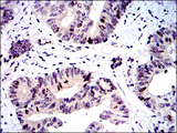 BIRC5 / Survivin Antibody - IHC of paraffin-embedded colon cancer tissues using BIRC5 mouse monoclonal antibody with DAB staining.