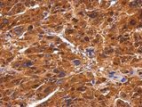 IHC of paraffin-embedded Hepatoma using BIVM antibody at 1:500 dilution.