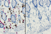 Endogenous alkaline phosphatase (AP) and peroxidase (HRP) activities in frozen intestine revealed with Vector Red™ AP Substrate (red) and ImmPACT™ DAB HRP Substrate (brown) (left). Same substrates used on BLOXALL™ Solution-treated tissue (right). BLOXALL™ Block.
