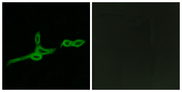 Immunofluorescence analysis of LOVO cells, using GPR15 Antibody. The picture on the right is blocked with the synthesized peptide.