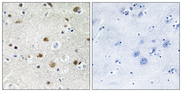 Immunohistochemistry analysis of paraffin-embedded human brain tissue, using TF3B Antibody. The picture on the right is blocked with the synthesized peptide.