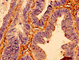 BTF3 Antibody - Immunohistochemistry of paraffin-embedded human colon cancer using BTF3 Antibody at dilution of 1:100